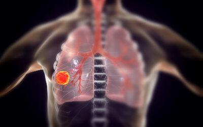 Efectos del amianto sobre la salud